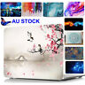 """Laptop Hard Case Keyboard Cover For Fit Macbook Air 11.6""""/13.3"""" Pro 13"""" 15"""" 2014"""