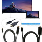 USB-C Type C Male USB 3.1 To Displayport 4K HDTV Adapter Cable For Laptop 1.8m