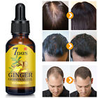 Hair-Growth-Products-For-Men-Women-Natural-Oil-Serum-Loss-Grow-Fast-Treatment-US