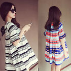 Women's Striped Dress Summer Shirt Dress Short Sleeve Loose Beautiful