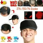 276 Led Laser Hair Growth Cap Hat LED Hair Loss Therapy Hair Regrowth Growth