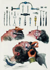 ML22 Vintage 1800's Medical Trepanning Trephining Surgical Poster RePrint A2/A3