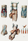 ML17 Vintage 1800's Medical Bloodletting Position Surgical Poster Re-Print A4