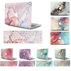 """Crystal See-through Hard Case Cover Skin for MacBook AIR 11"""" 13""""/ PRO 15"""" Retina"""