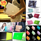 """Silky Leather Coated/Marble Quicksand Matte Case for MacBook Air 11"""" A1370 A1465"""