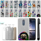 For ZTE Zmax Pro Carry Z981 Slim Sparkling Silver TPU Silicone Case Cover + Pen