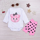Toddler Baby Girl Cotton Romper Short Sleeve Jumpsuit Leg Warmer Outfits Clothes