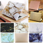 "Silky Glitter Shiny Rose Gold/ Marble Matte Case for MacBook AIR PRO 13"" 13.3"""