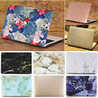 "Glitter Shiny/ Flower Marble Matte Hard Case Cover for MacBook AIR PRO 13"" 13.3"""