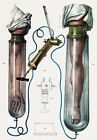 ML14 Vintage 1800's Medical Junods Ventose Surgical Poster Re-Print A2/A3/A4