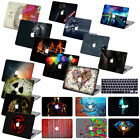 "3D design Painted Hard Case Cover for laptop Macbook Pro 13""15""Retina Air 11""12"""