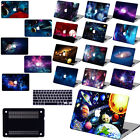 "MATTE Space Sky Painted Hard Case Cover For Macbook Pro Air 11""13""15"" Retina 12"""