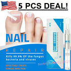 Powerful Nail Fungal Treatment Pen Anti Fungus Infection Biological Repairs Care $9.88 USD on eBay