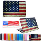 "Hard Rubberized Case Cover Shell + Keyboard Skin for Macbook Pro Retina 13"" 15"""