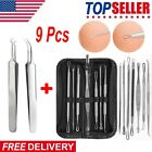 9 Pcs Blackhead Pimple Blemish Face Acne Comedone Remover Extractor Tool Set Kit